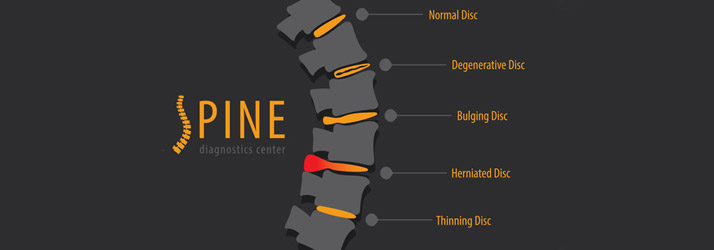 A Regenerative Approach for the Pain of Degenerative Disc Disease