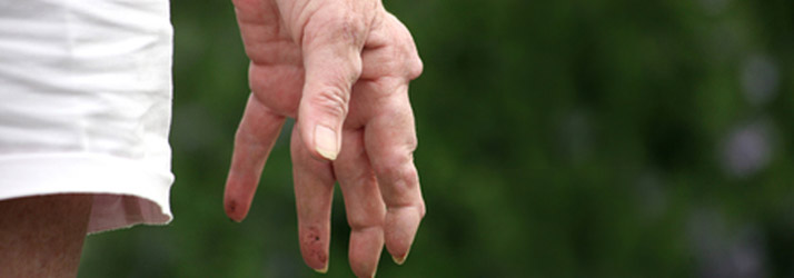 Effective New Treatments Offer Arthritis Pain Relief