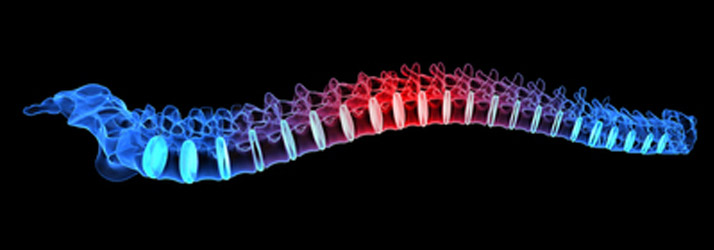 Could Your Chronic Pain Be Radiculopathy – a Pinched Nerve in Your Spine?